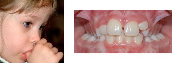 ¿En qué casos se necesita ortodoncia con dientes de leche en la boca todavía?