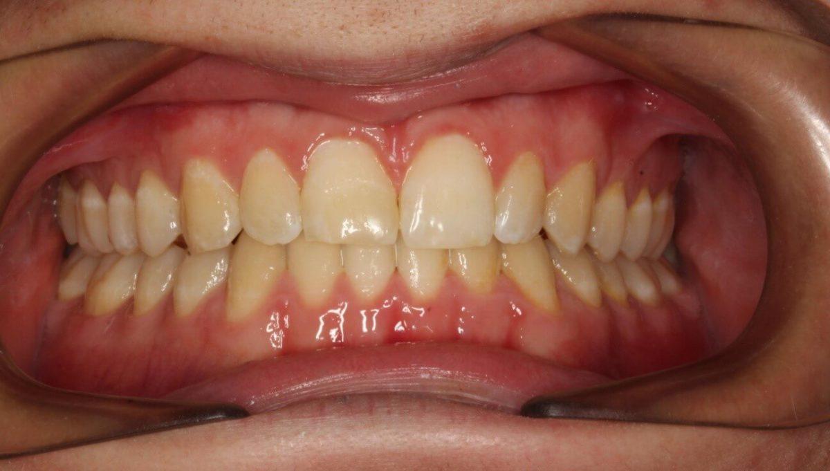 ¿Es necesario quitar las muelas del juicio para la ortodoncia?